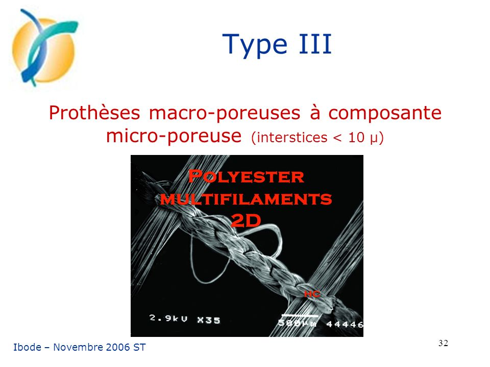 Type III Prothèses macro-poreuses à composante micro-poreuse (interstices < 10 µ) Ibode – Novembre 2006 ST.