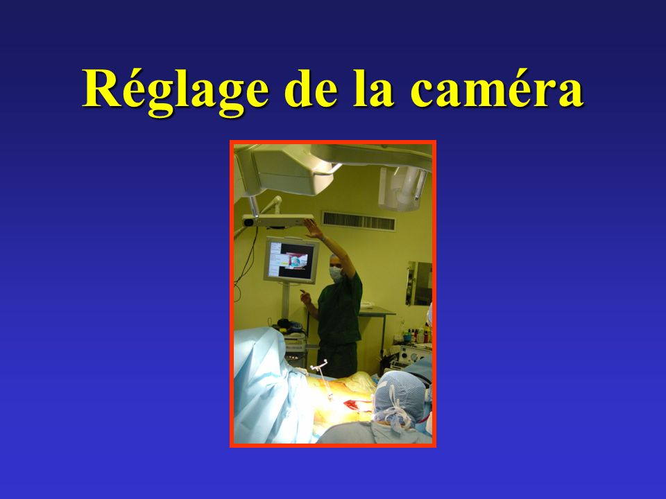 Réglage de la caméra