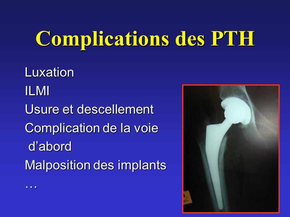 Complications des PTH Luxation ILMI Usure et descellement