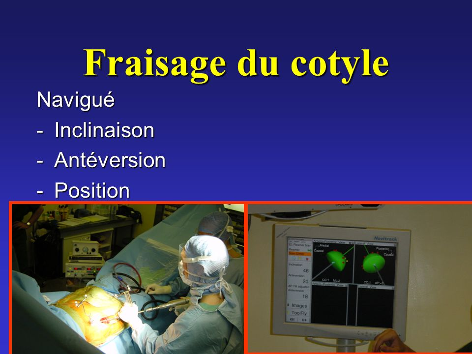 Fraisage du cotyle Navigué Inclinaison Antéversion Position