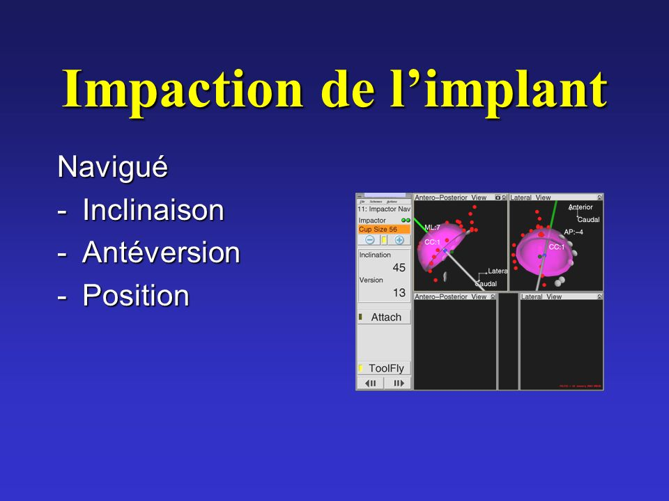 Impaction de l'implant