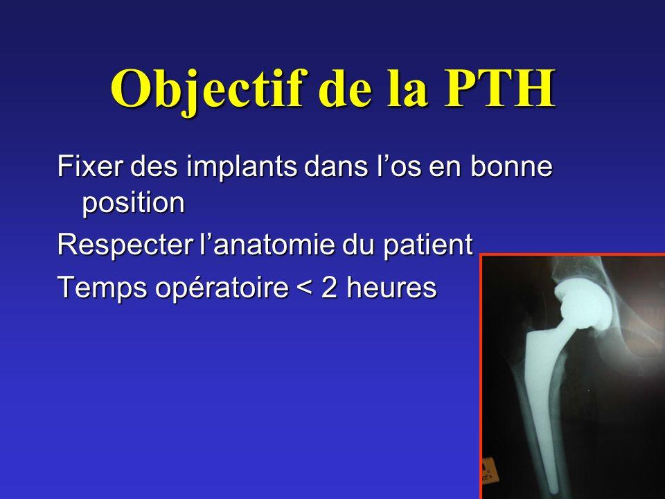 Objectif de la PTH Fixer des implants dans l'os en bonne position