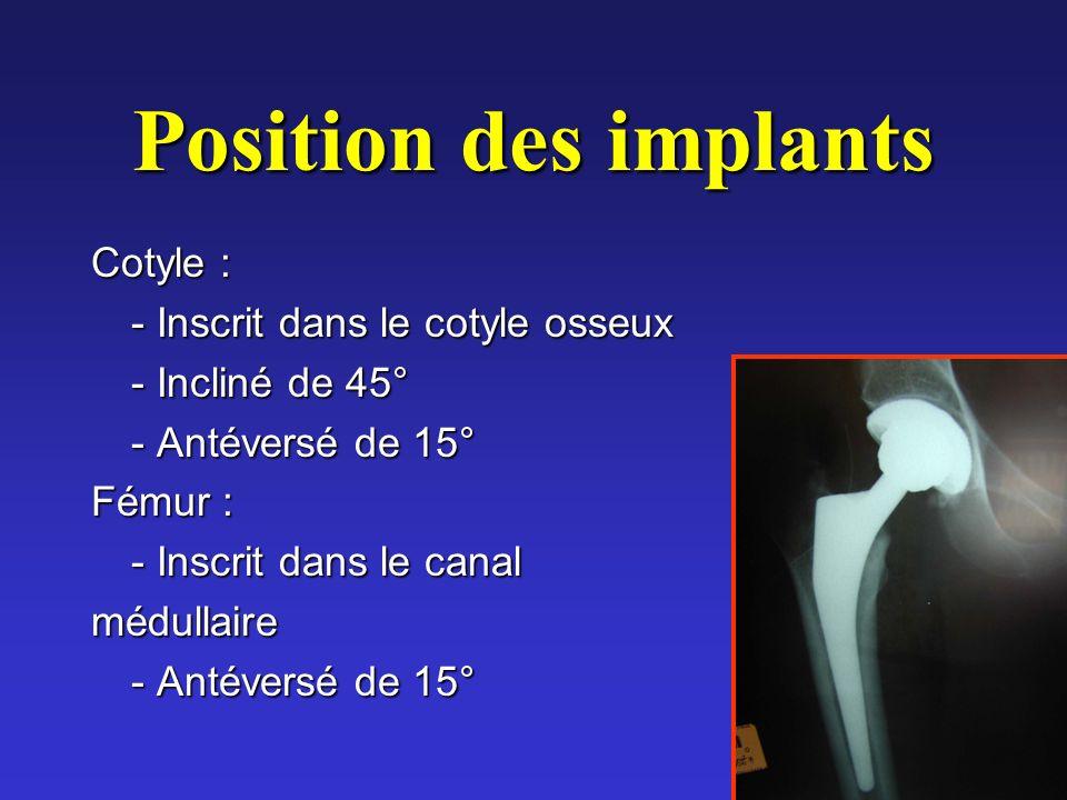 Position des implants Cotyle : - Inscrit dans le cotyle osseux