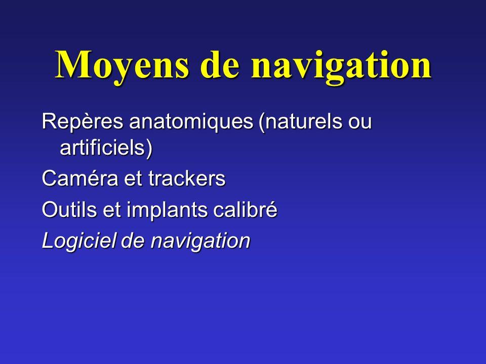 Moyens de navigation Repères anatomiques (naturels ou artificiels)