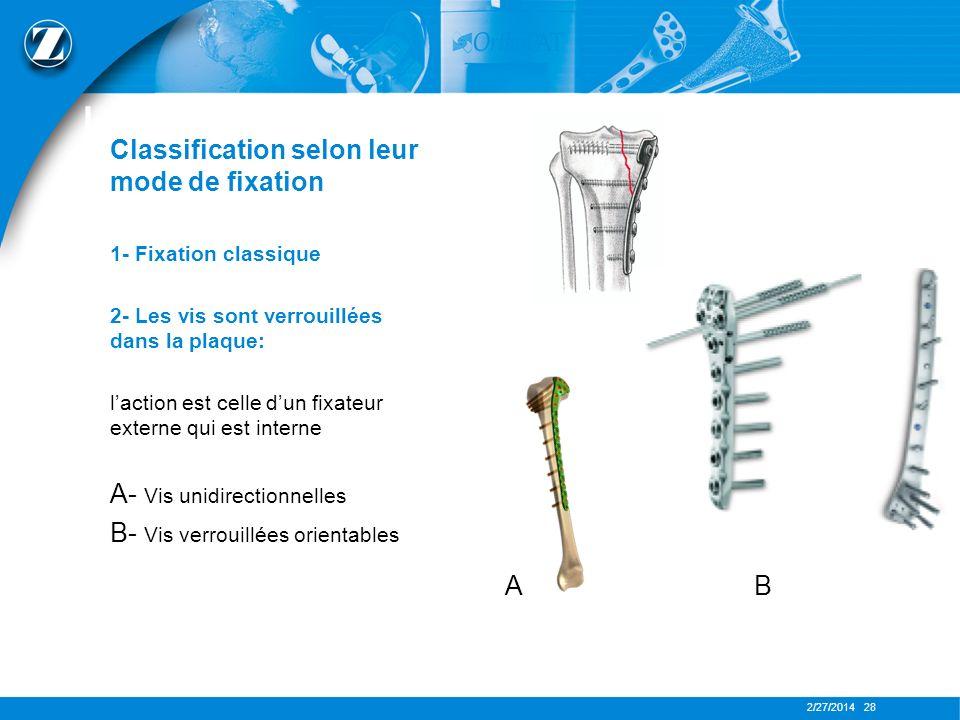 LES PLAQUES Classification selon leur mode de fixation