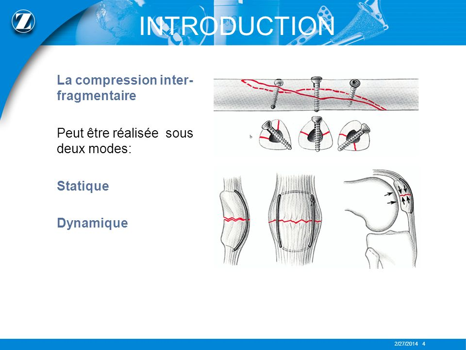 INTRODUCTION La compression inter-fragmentaire
