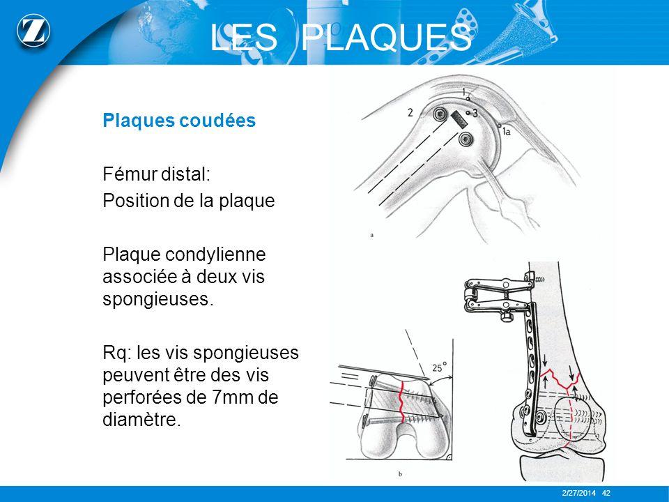 LES PLAQUES Plaques coudées Fémur distal: Position de la plaque