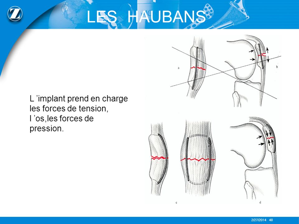 LES HAUBANS L 'implant prend en charge les forces de tension, l 'os,les forces de pression.