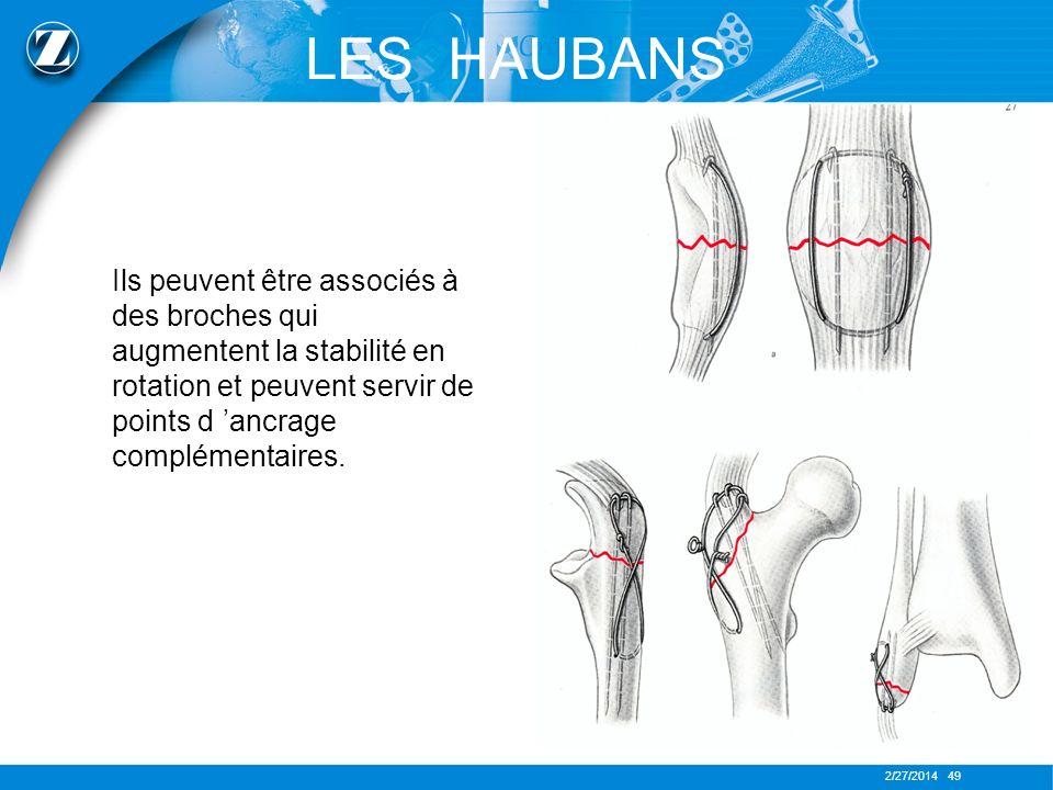LES HAUBANS Ils peuvent être associés à des broches qui augmentent la stabilité en rotation et peuvent servir de points d 'ancrage complémentaires.