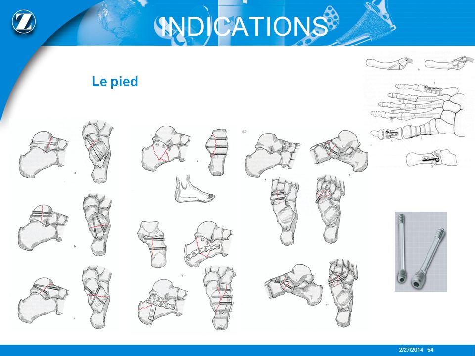 INDICATIONS Le pied