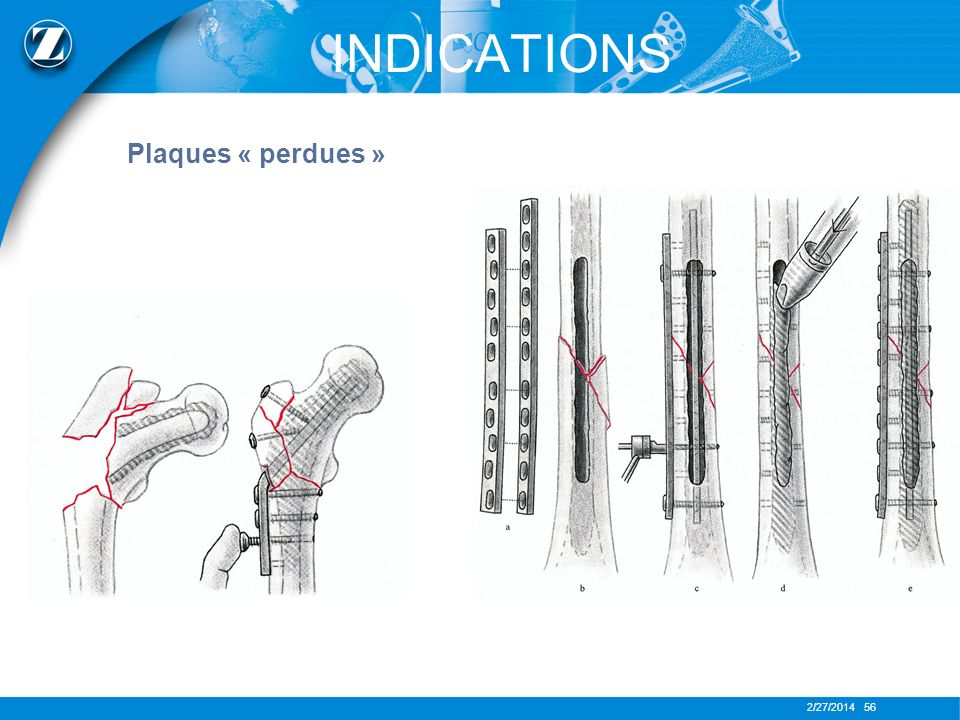 INDICATIONS Plaques « perdues »