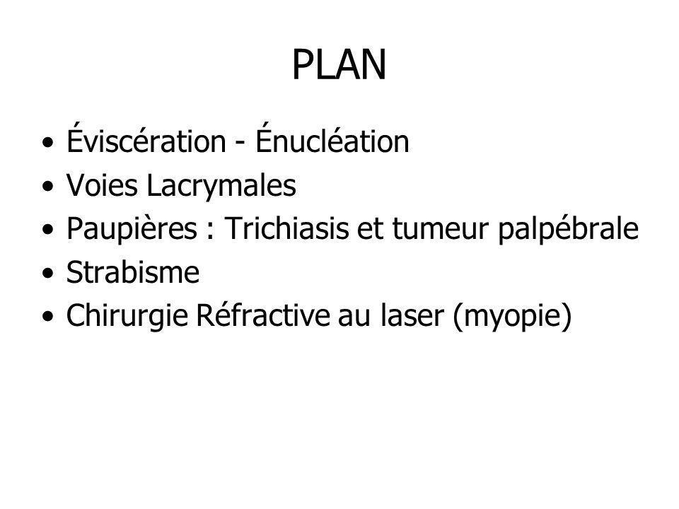 PLAN Éviscération - Énucléation Voies Lacrymales