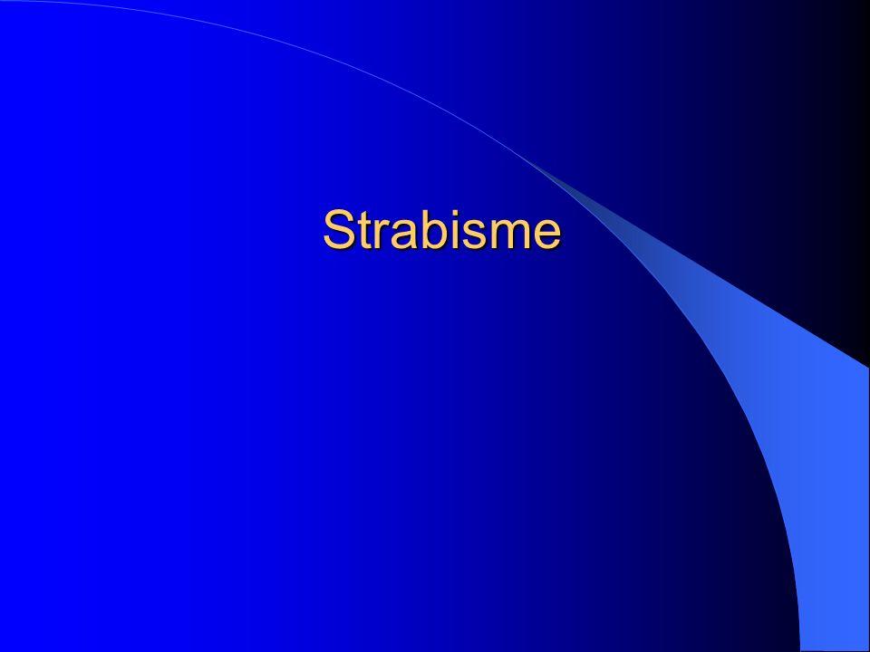 Strabisme