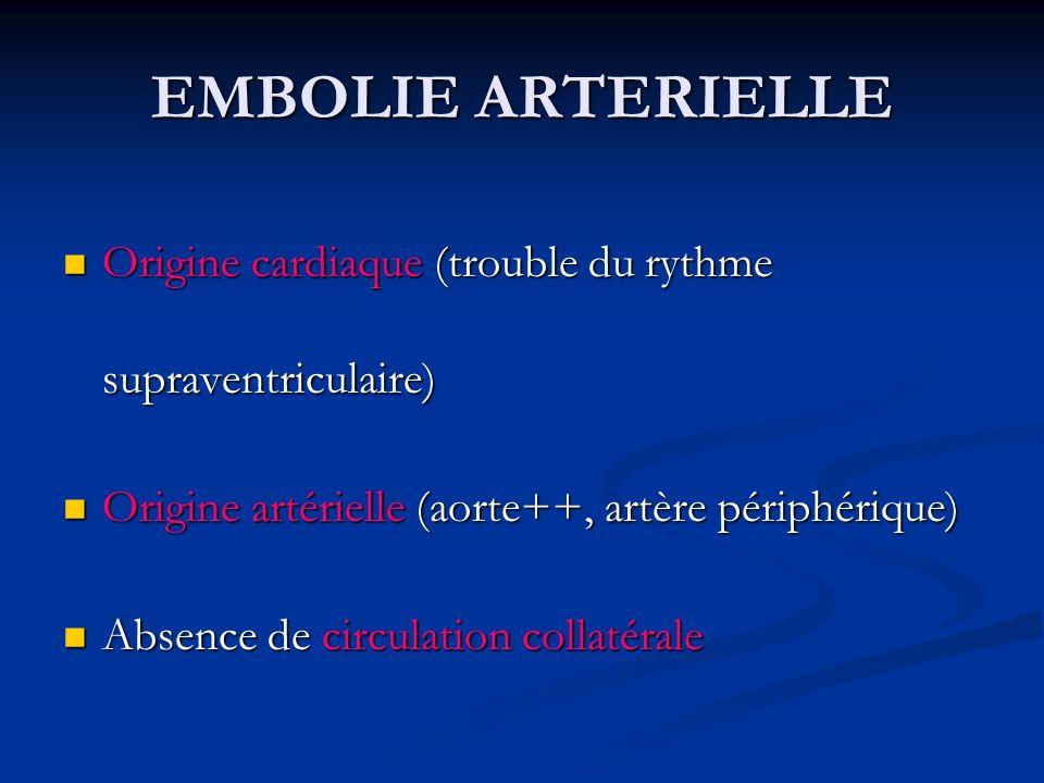 EMBOLIE ARTERIELLE Origine cardiaque (trouble du rythme supraventriculaire) Origine artérielle (aorte++, artère périphérique)
