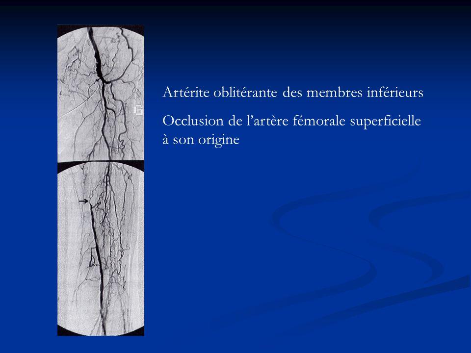 Artérite oblitérante des membres inférieurs