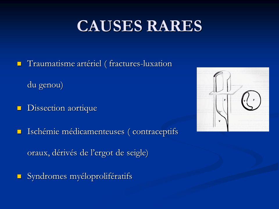 CAUSES RARES Traumatisme artériel ( fractures-luxation du genou)