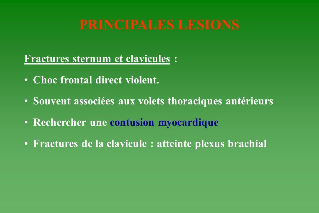 PRINCIPALES LESIONS Fractures sternum et clavicules :