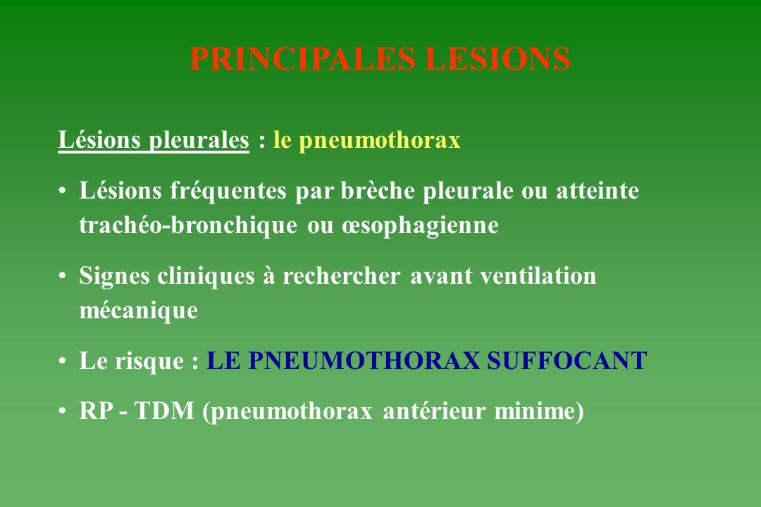 PRINCIPALES LESIONS Lésions pleurales : le pneumothorax