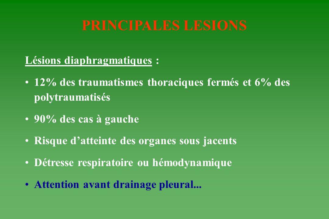PRINCIPALES LESIONS Lésions diaphragmatiques :