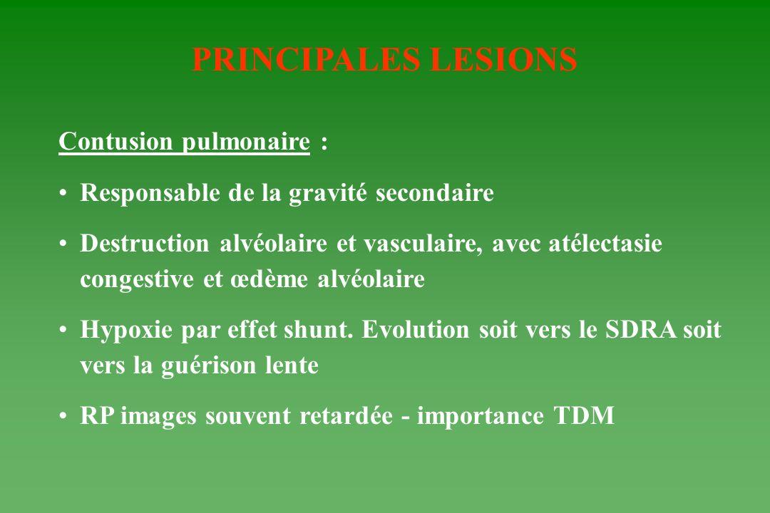 PRINCIPALES LESIONS Contusion pulmonaire :