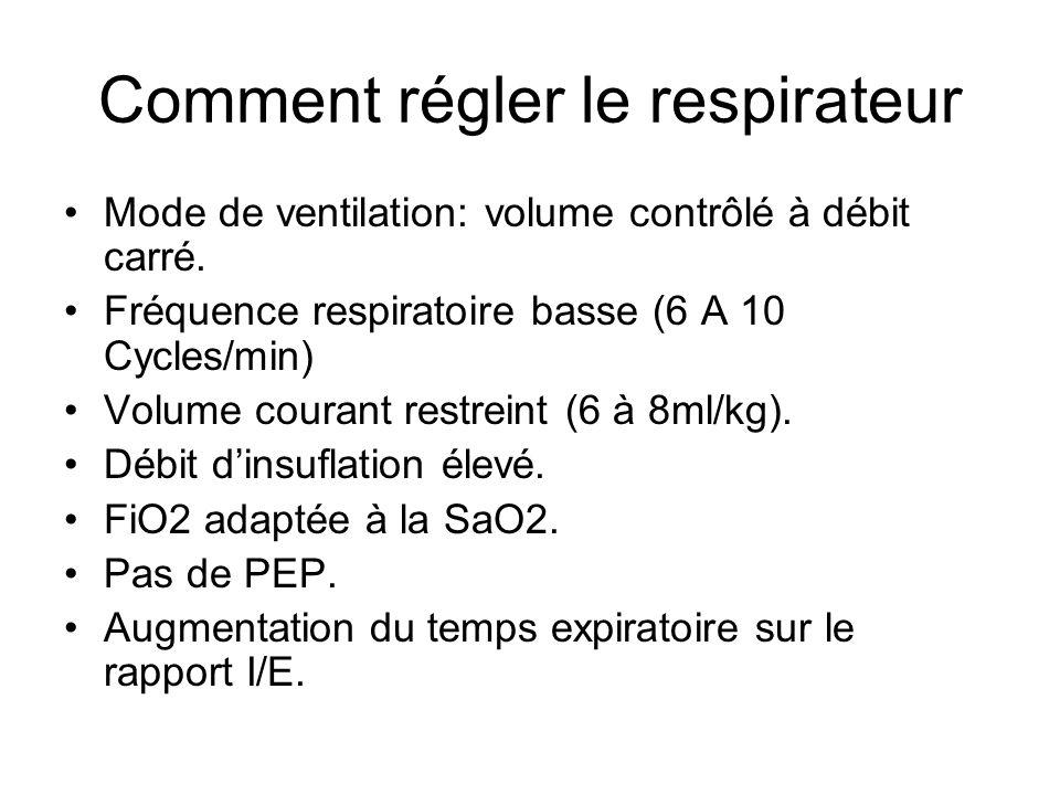 Comment régler le respirateur