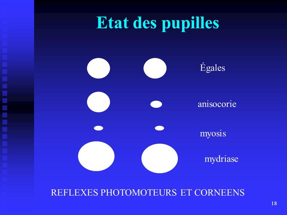 Etat des pupilles Égales anisocorie myosis mydriase