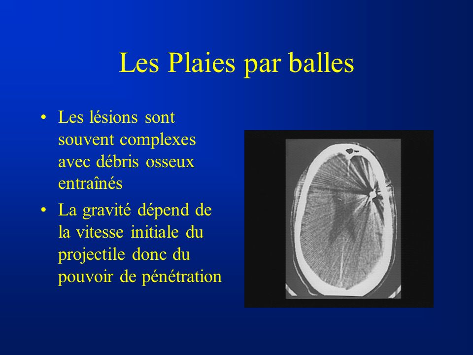 Les Plaies par balles Les lésions sont souvent complexes avec débris osseux entraînés.