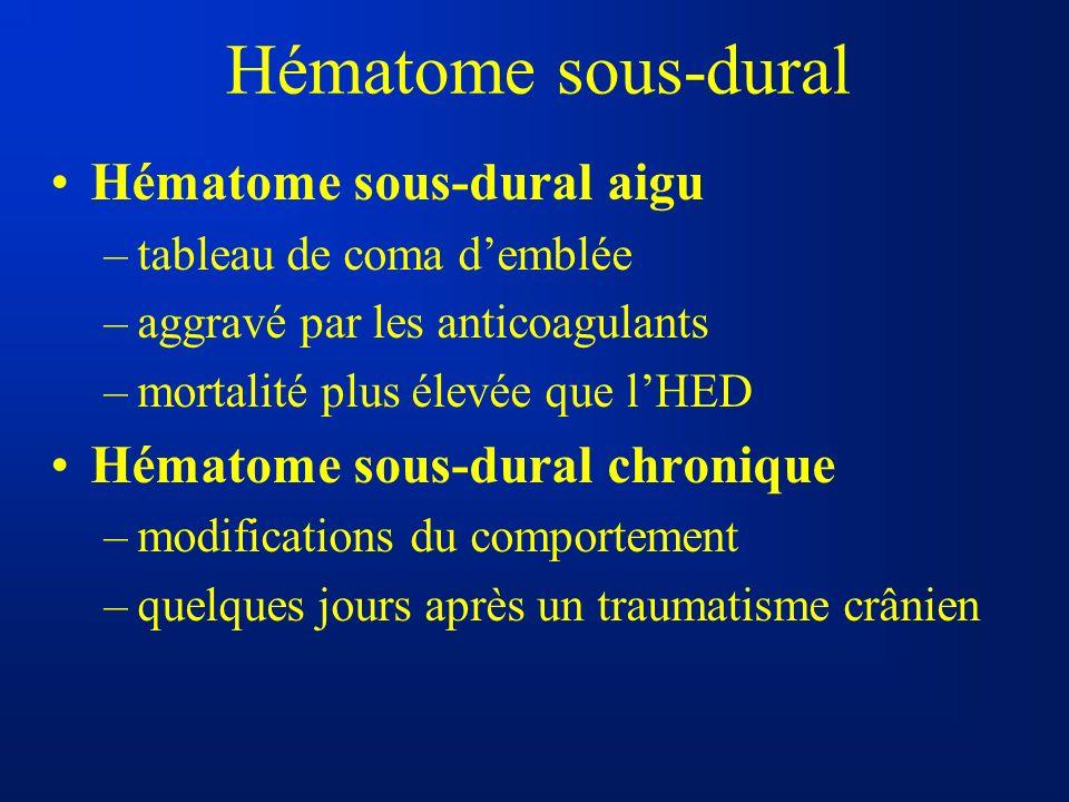 Hématome sous-dural Hématome sous-dural aigu