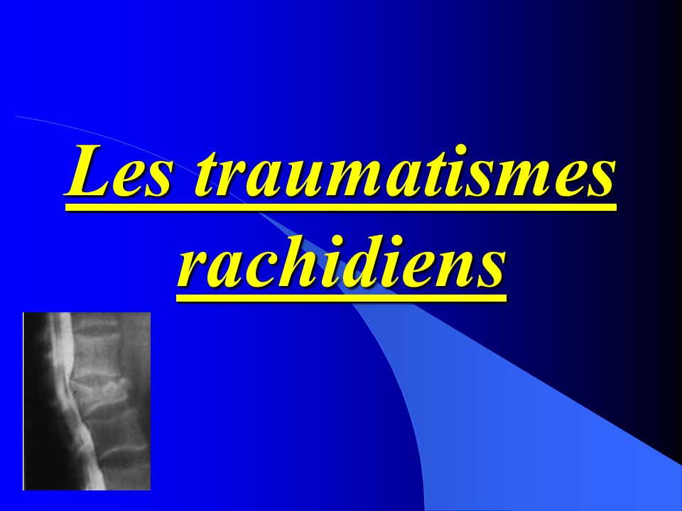 Les traumatismes rachidiens