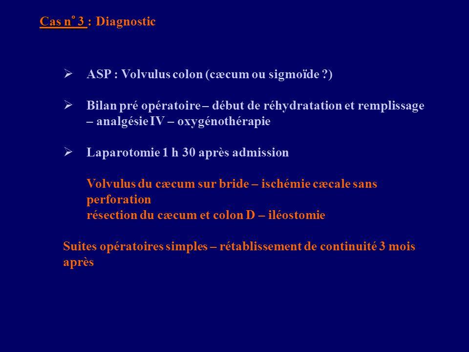 Cas n° 3 : Diagnostic ASP : Volvulus colon (cæcum ou sigmoïde )