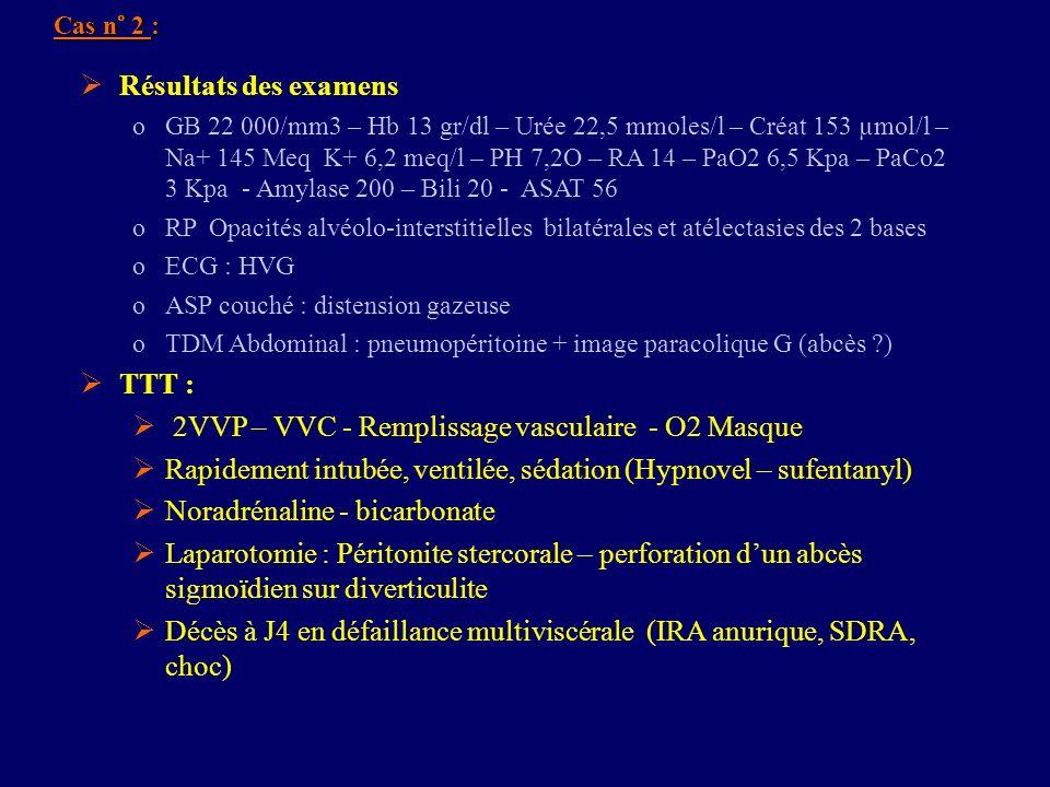 2VVP – VVC - Remplissage vasculaire - O2 Masque