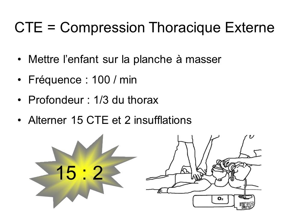 CTE = Compression Thoracique Externe