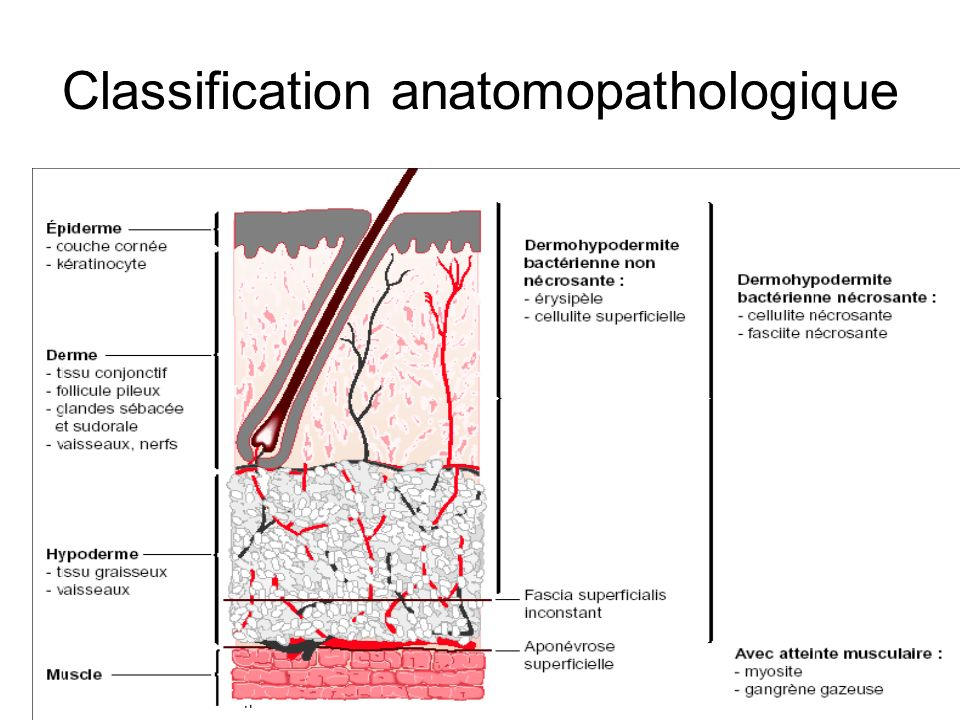 Classification anatomopathologique