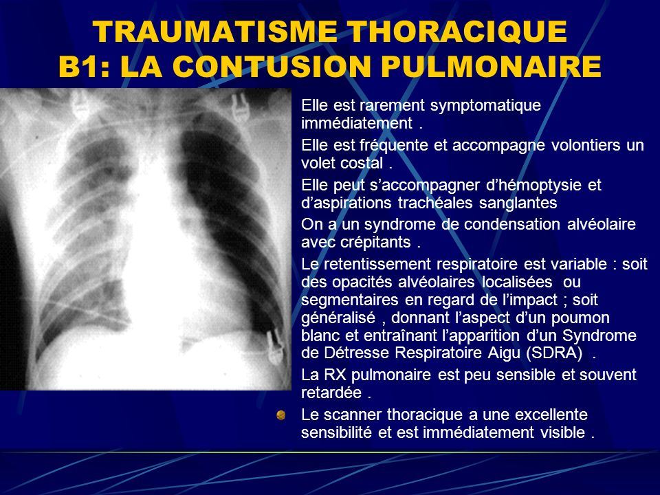 TRAUMATISME THORACIQUE B1: LA CONTUSION PULMONAIRE