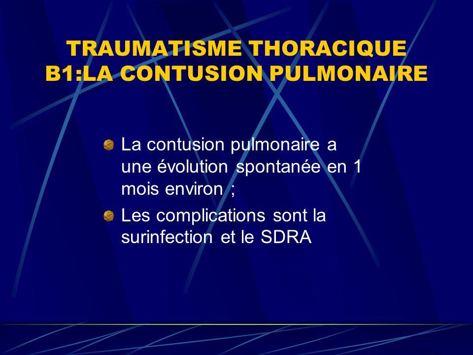 TRAUMATISME THORACIQUE B1:LA CONTUSION PULMONAIRE