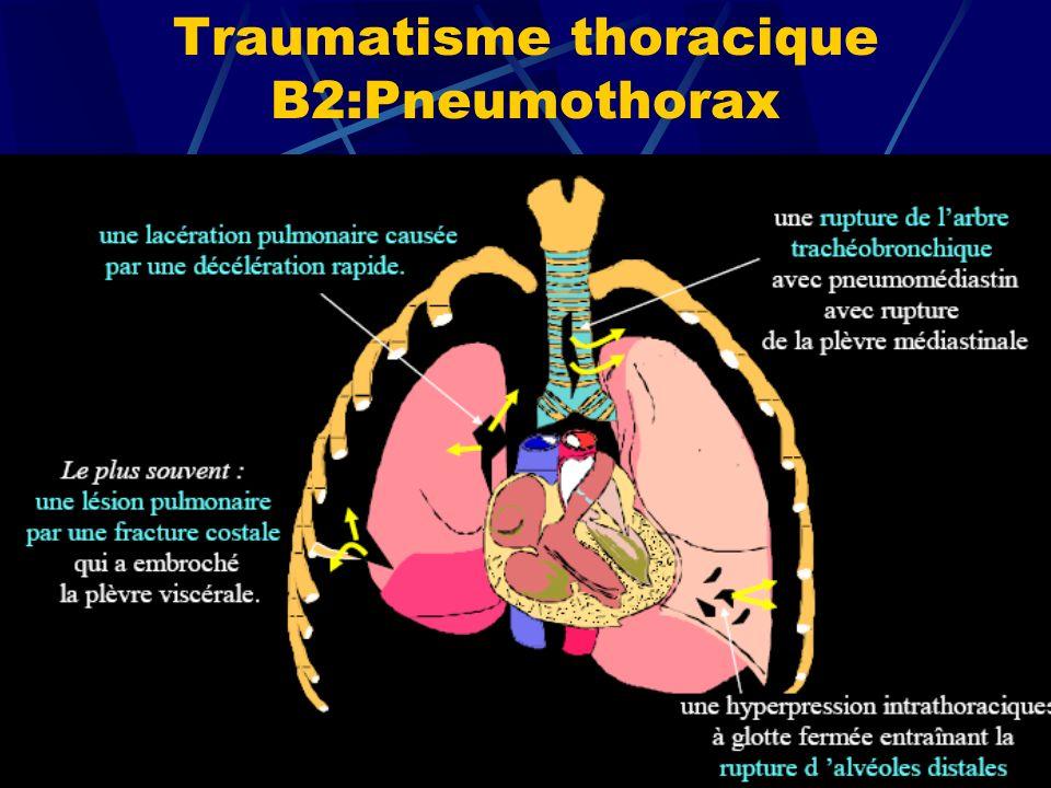 Traumatisme thoracique B2:Pneumothorax