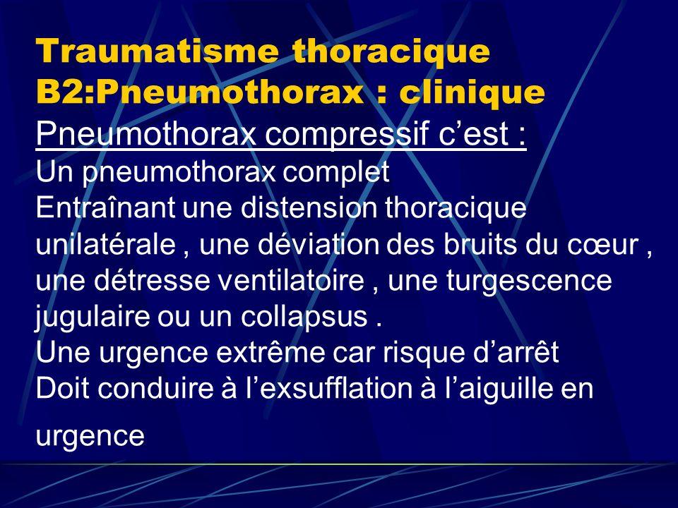 Traumatisme thoracique B2:Pneumothorax : clinique Pneumothorax compressif c'est : Un pneumothorax complet Entraînant une distension thoracique unilatérale , une déviation des bruits du cœur , une détresse ventilatoire , une turgescence jugulaire ou un collapsus .