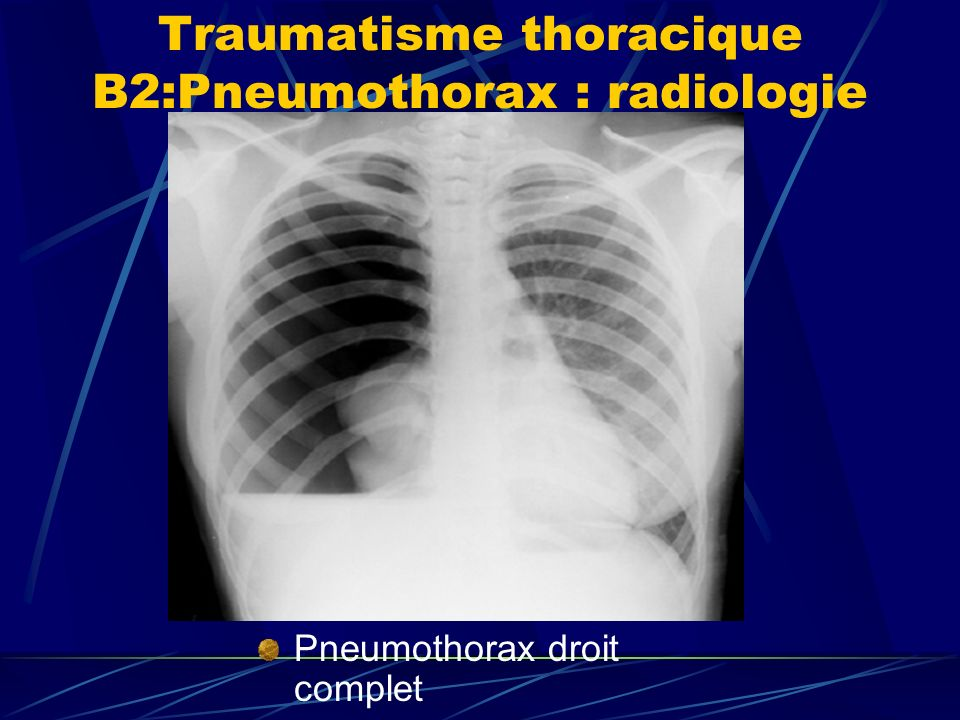 Traumatisme thoracique B2:Pneumothorax : radiologie