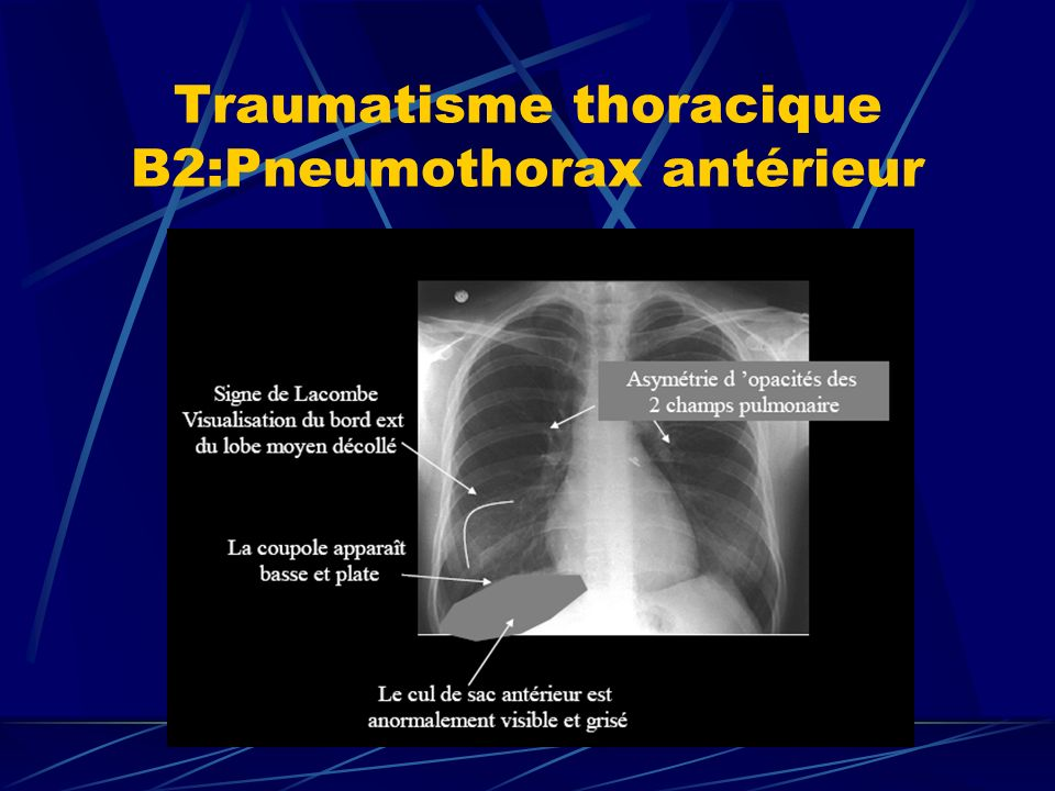 Traumatisme thoracique B2:Pneumothorax antérieur