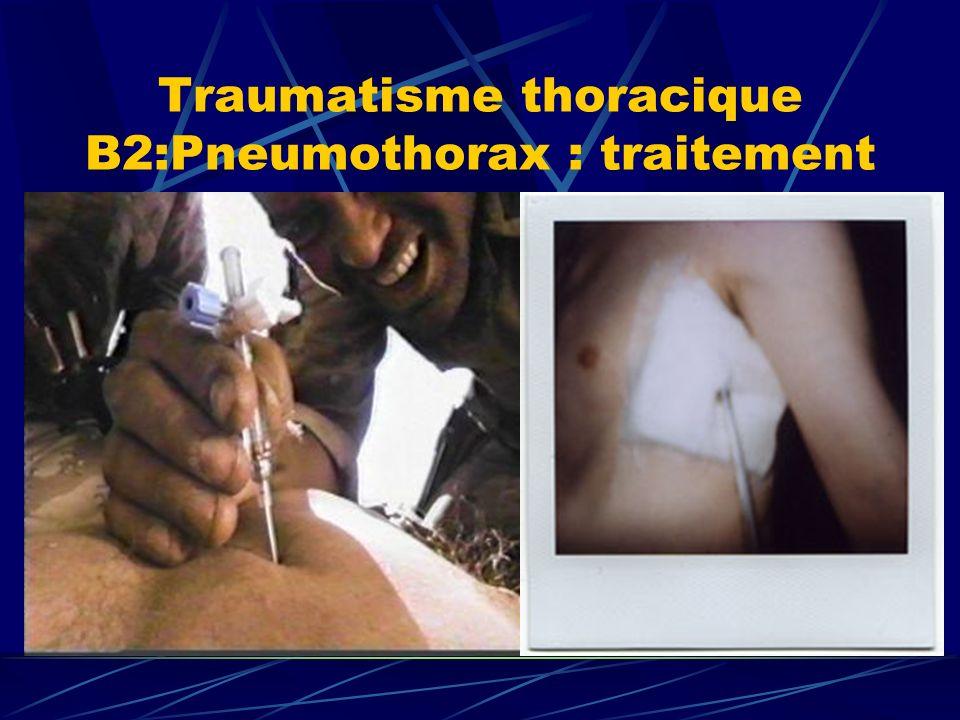 Traumatisme thoracique B2:Pneumothorax : traitement
