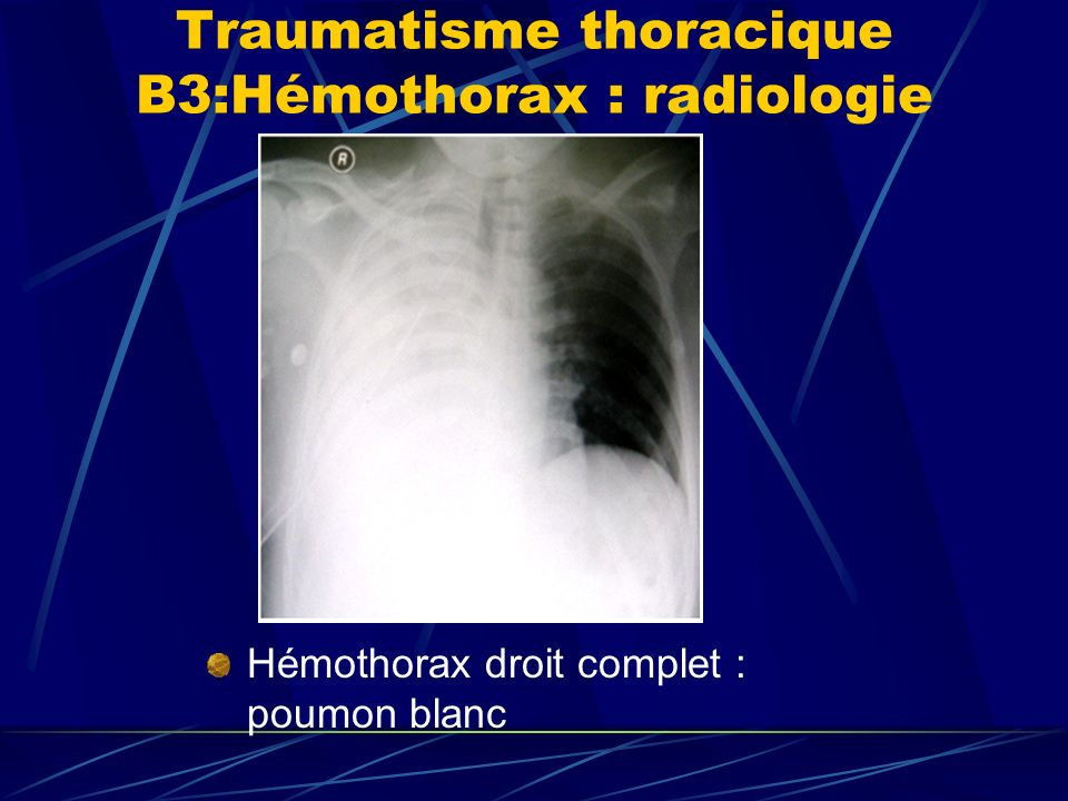 Traumatisme thoracique B3:Hémothorax : radiologie