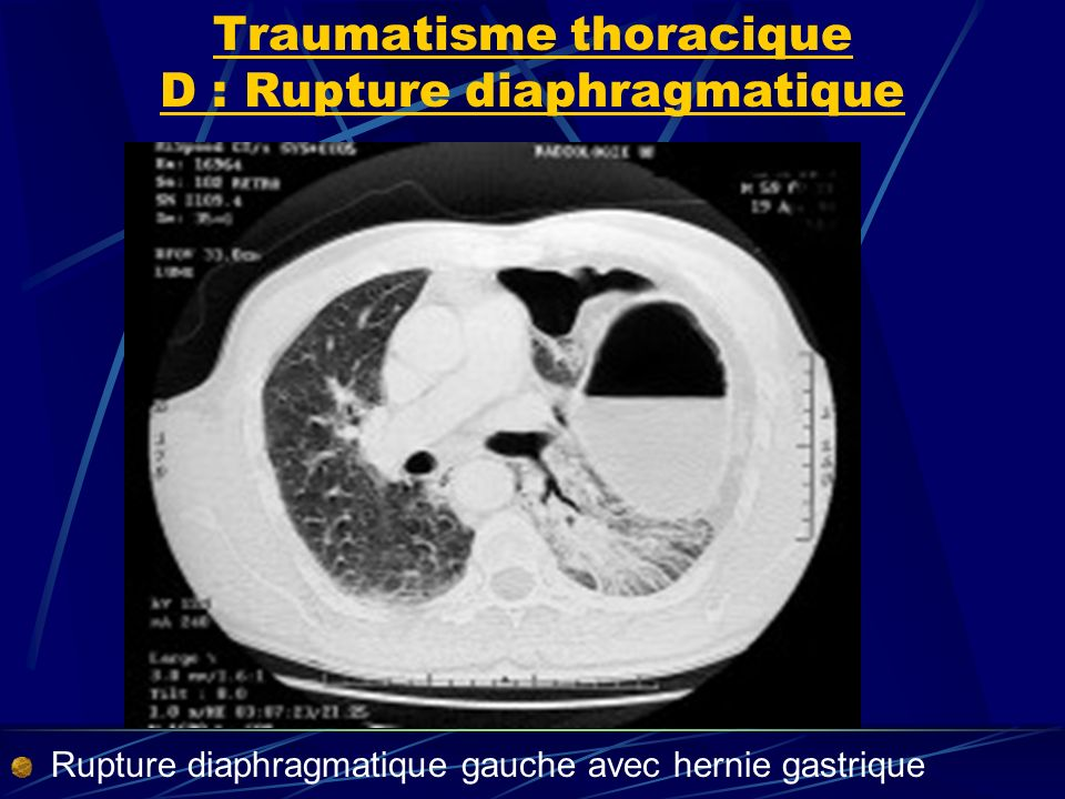 Traumatisme thoracique D : Rupture diaphragmatique