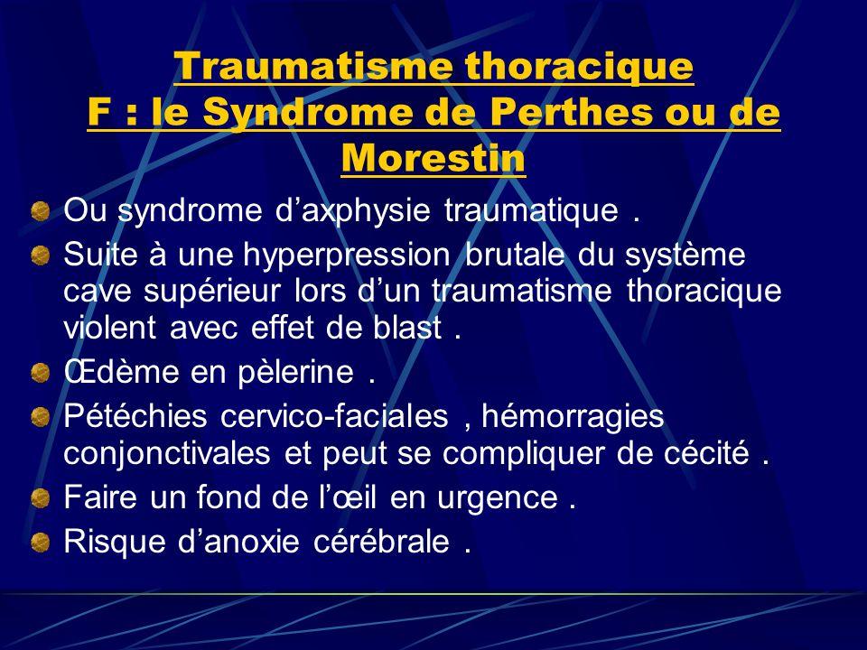 Traumatisme thoracique F : le Syndrome de Perthes ou de Morestin