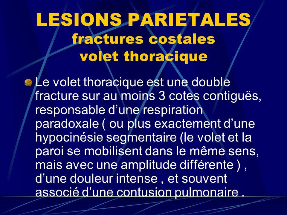 LESIONS PARIETALES fractures costales volet thoracique