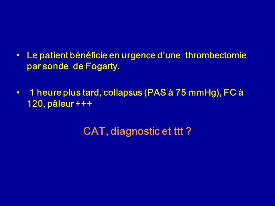 Le patient bénéficie en urgence d'une thrombectomie par sonde de Fogarty.