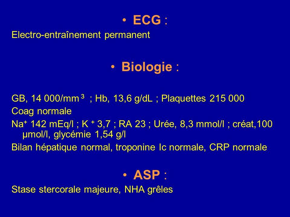 ECG : Biologie : ASP : Electro-entraînement permanent