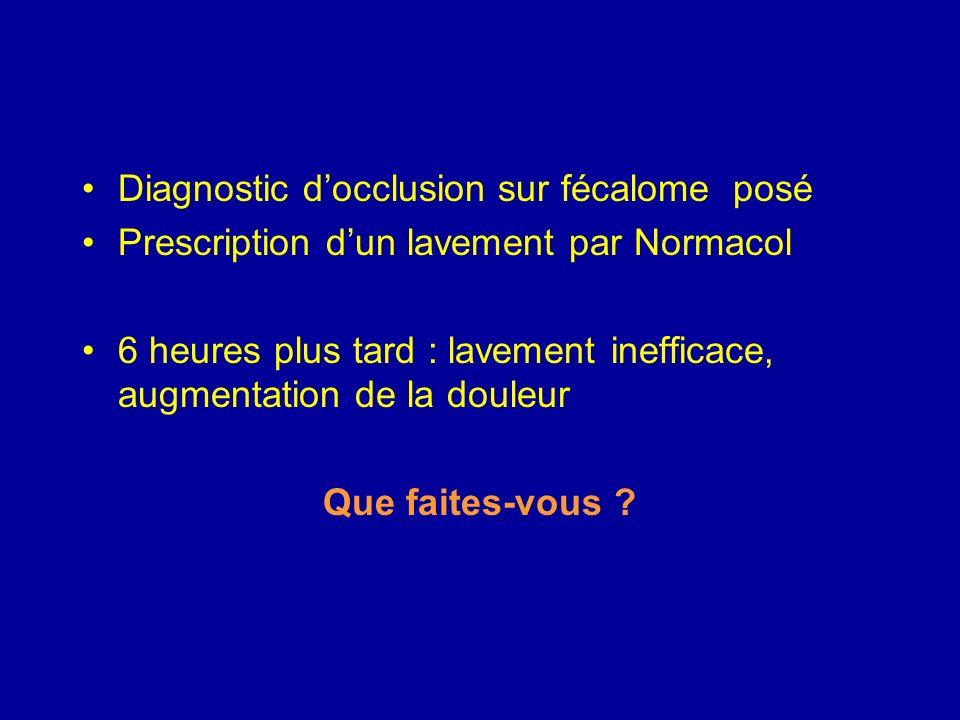 Diagnostic d'occlusion sur fécalome posé