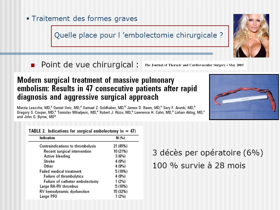 Point de vue chirurgical :