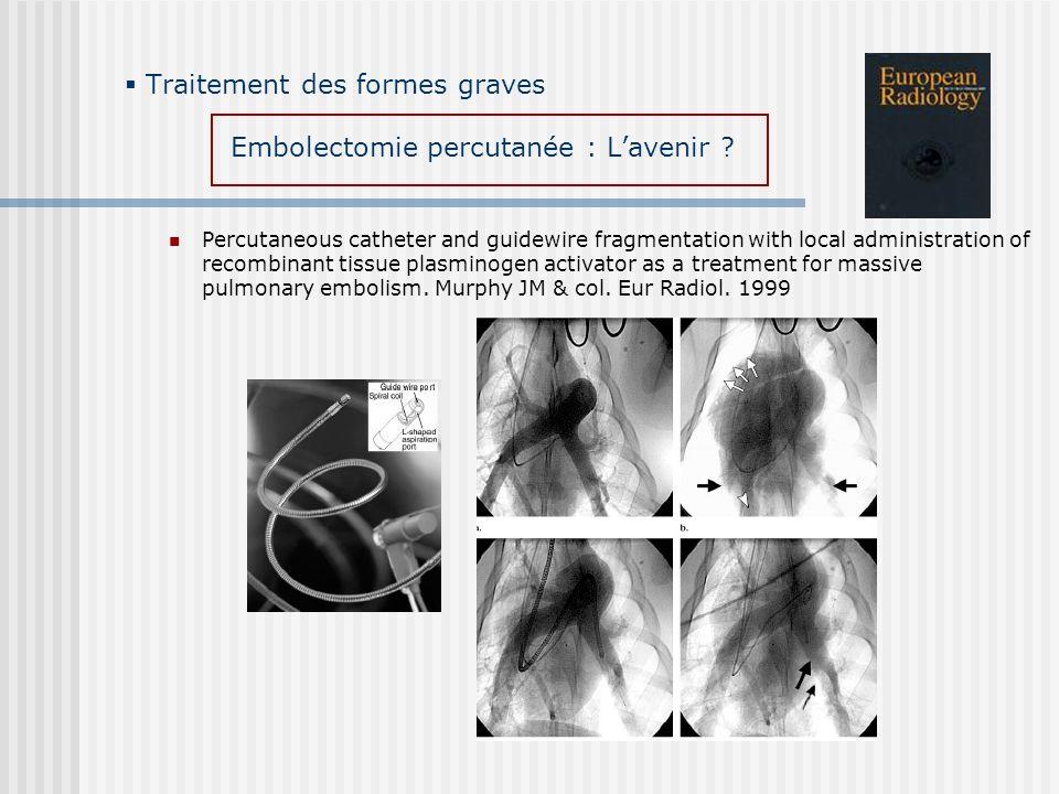 Traitement des formes graves Embolectomie percutanée : L'avenir