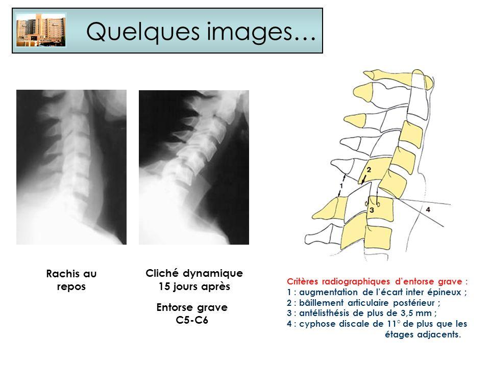 Quelques images… Rachis au repos Cliché dynamique 15 jours après